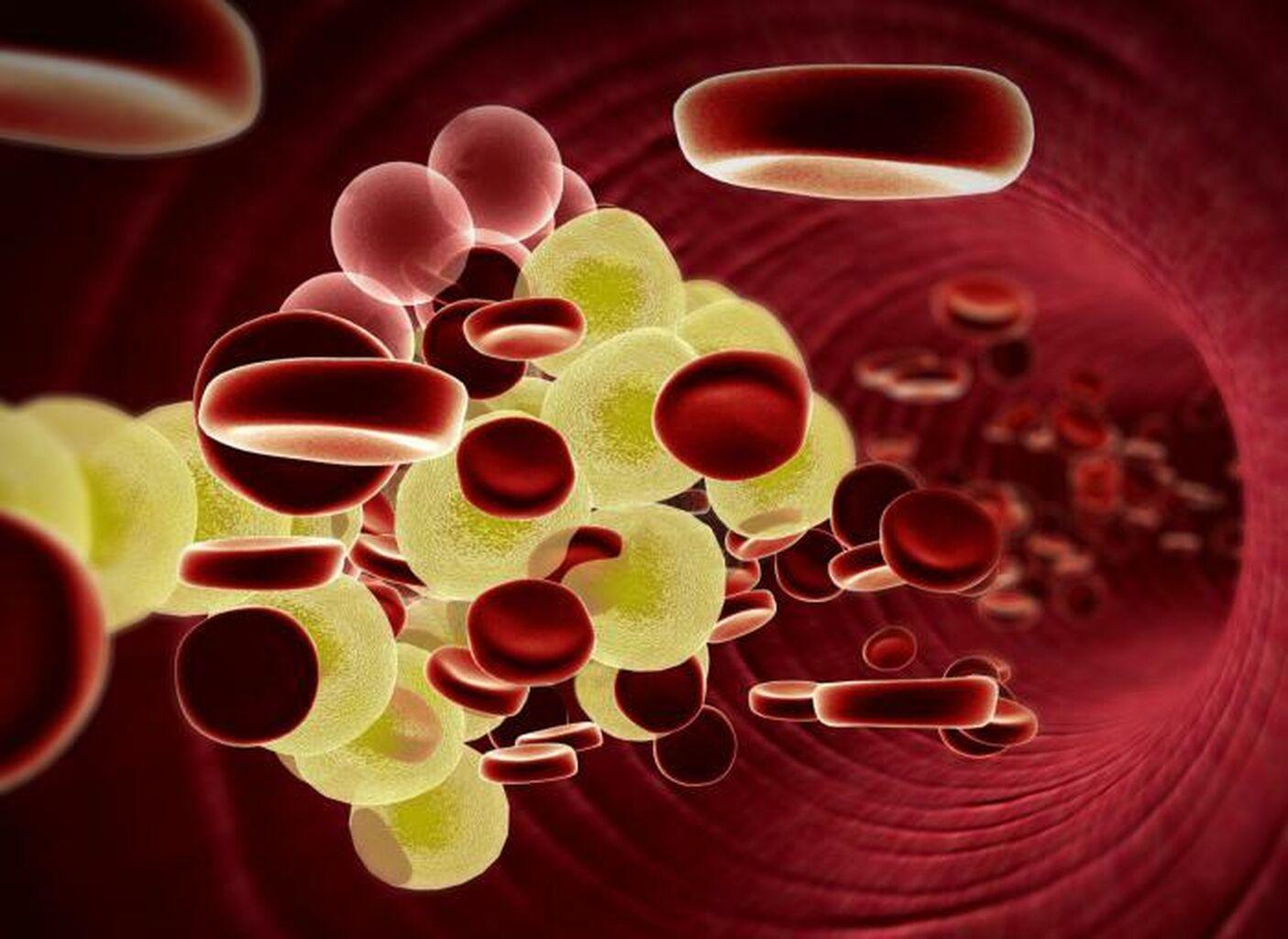 colesterol hdl o de alta densidad