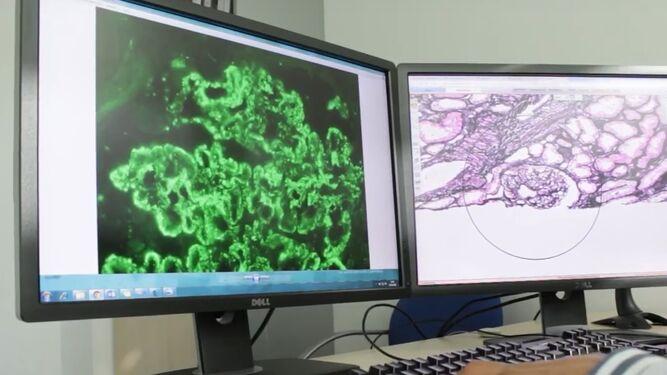 Imágenes de anatomía patológica digitalizadas por el grupo Quirónsalud.