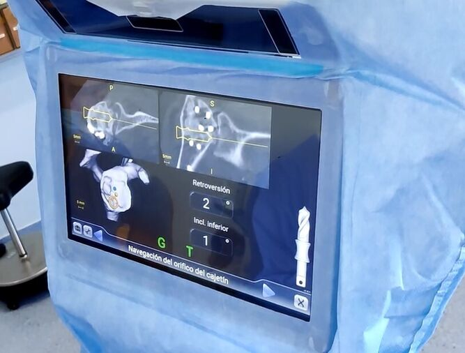 Detalle de las imágenes proyectadas en el GPS.