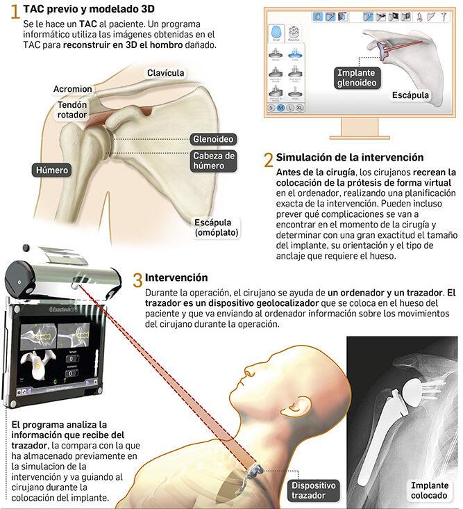 Pulse para ampliar. Infografía que describe la intervención. Fuente: ExactechGPS y Hospital de Osuna.