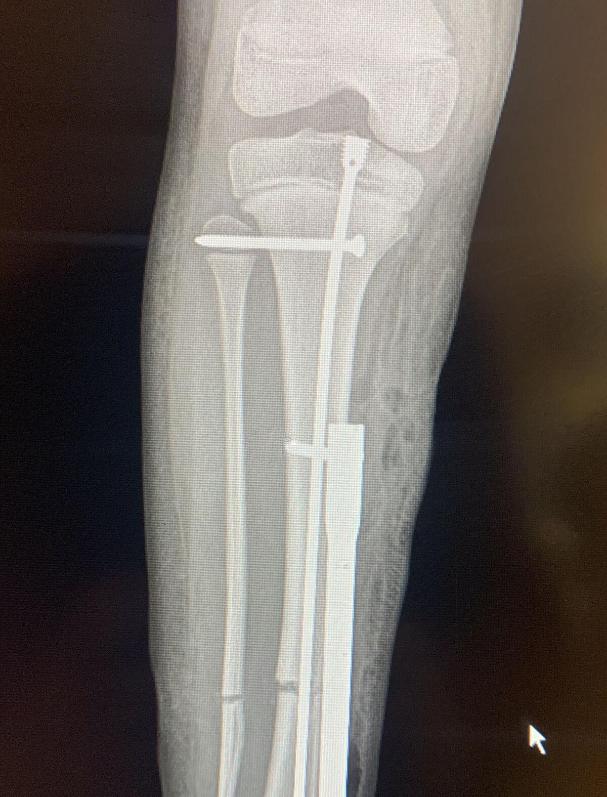 La imagen muestra el dispositivo de alargamiento del hueso.
